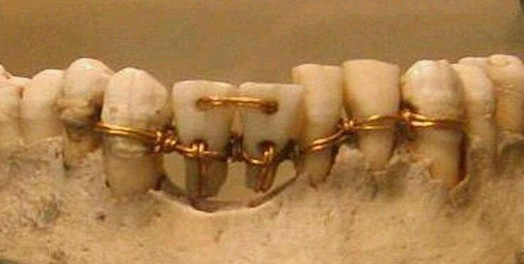 Imagem de dentes amarrados