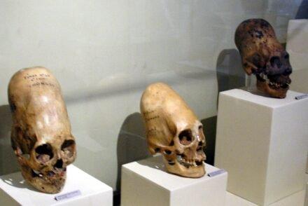 Crânios de Paracas.