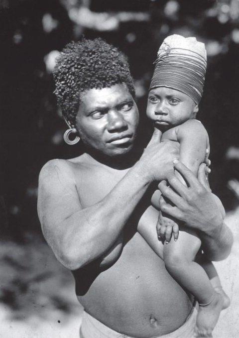 Criança da etnia Vanuatu com crânio enfaixado.