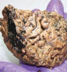 cérebro humano de 2600 anos