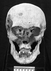 Crânio de Nicolau II